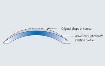 Wavefront Optimized® Ablation Profile