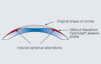 Non-Wavefront Optimized® Ablation Profile