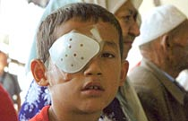 Eight-year-old boy with eye injury in China