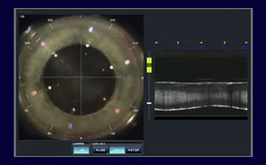 LenSx® Laser SoftFit™ Patient Interface docking to the eye