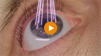 Watch this video to learn more about the WaveLight® EX500's advanced eye tracker.