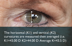 Keratometry measurements