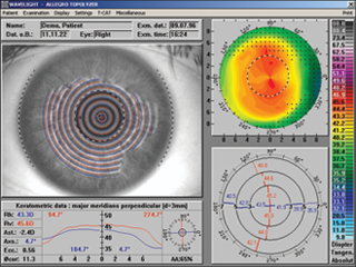 The WaveLight® Topolyzer™ VARIO generates high-resolution corneal images.