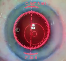 The ORA™ System provides real-time confirmation of LRI positioning through your ocular.
