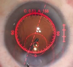 The ORA™ System provides precise guidance for toric IOL positioning through your ocular.